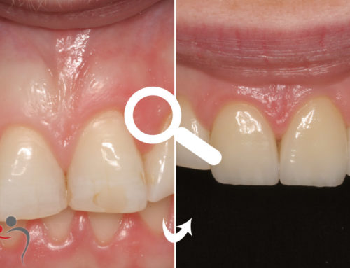 Veneers for Front Teeth